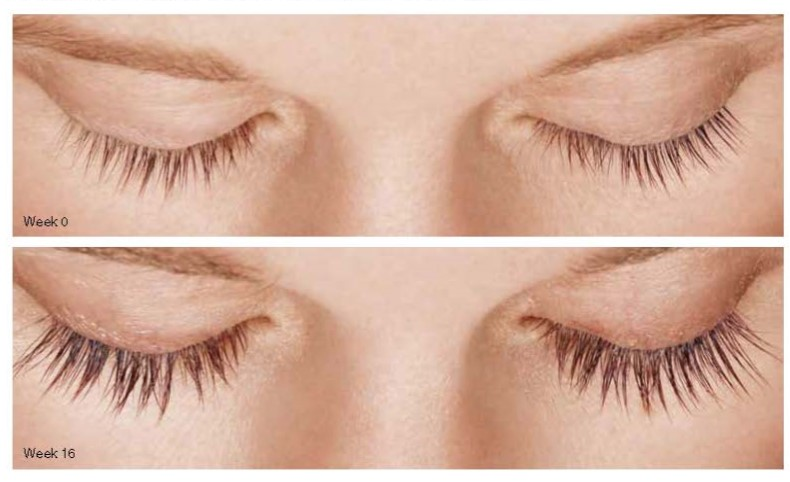 de1a5421568 LATISSE for Lashes. LATISSE is the only FDA-approved treatment to grow eyelashes  longer ...
